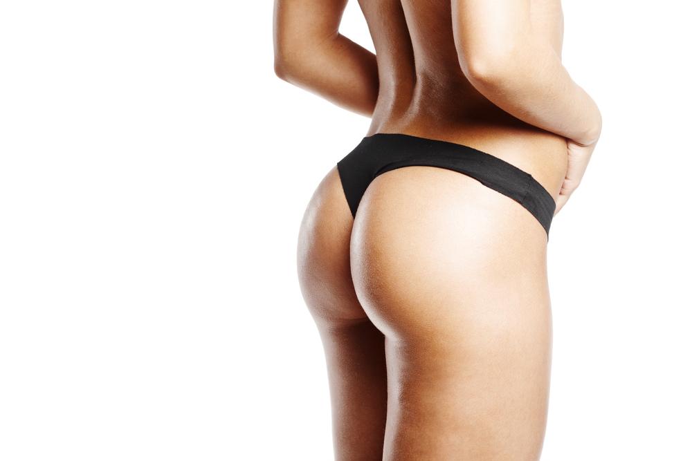 お尻・臀部のベイザー脂肪吸引、ダウンタイム当日から1か月経過をまとめ